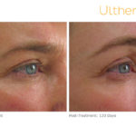 Ultherapy Before and After Crows Feet