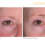 Ultherapy Before and After Eyes