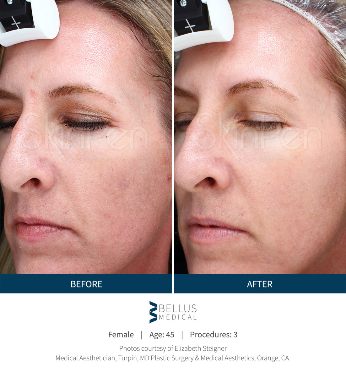 Microneedling With Prp Platelet Rich Plasma Tribeca
